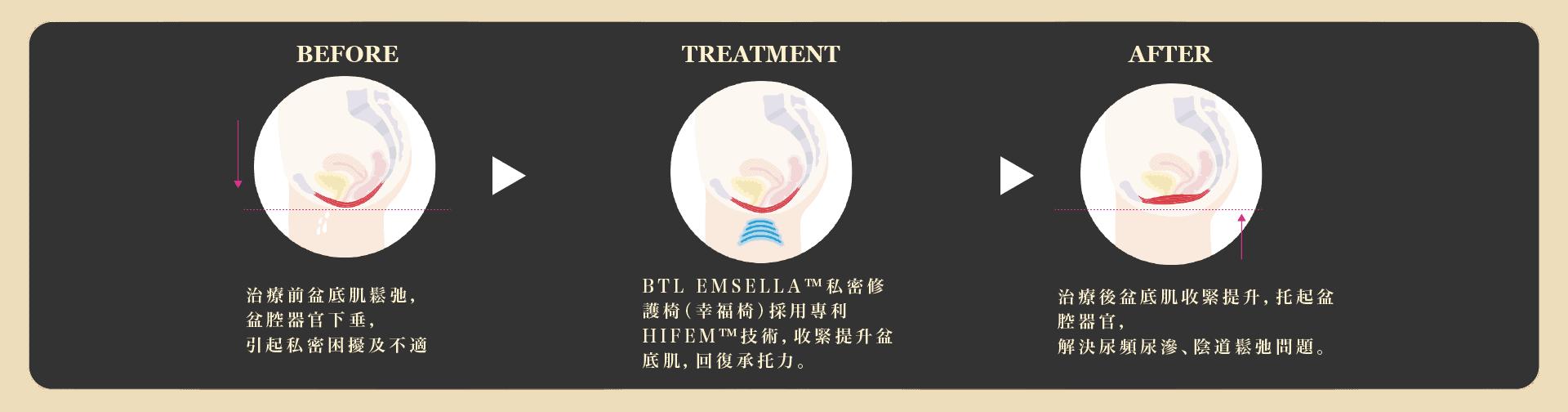 紮肚及產後修復療程優惠 鬆弛素 工作區域 1 複本 19