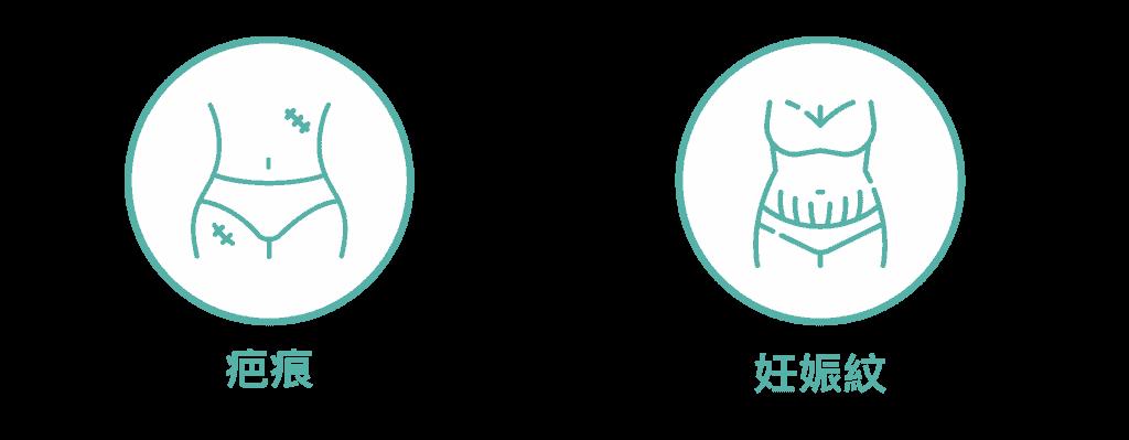 產後腹部 (肚皮)護理 icon1 06 3
