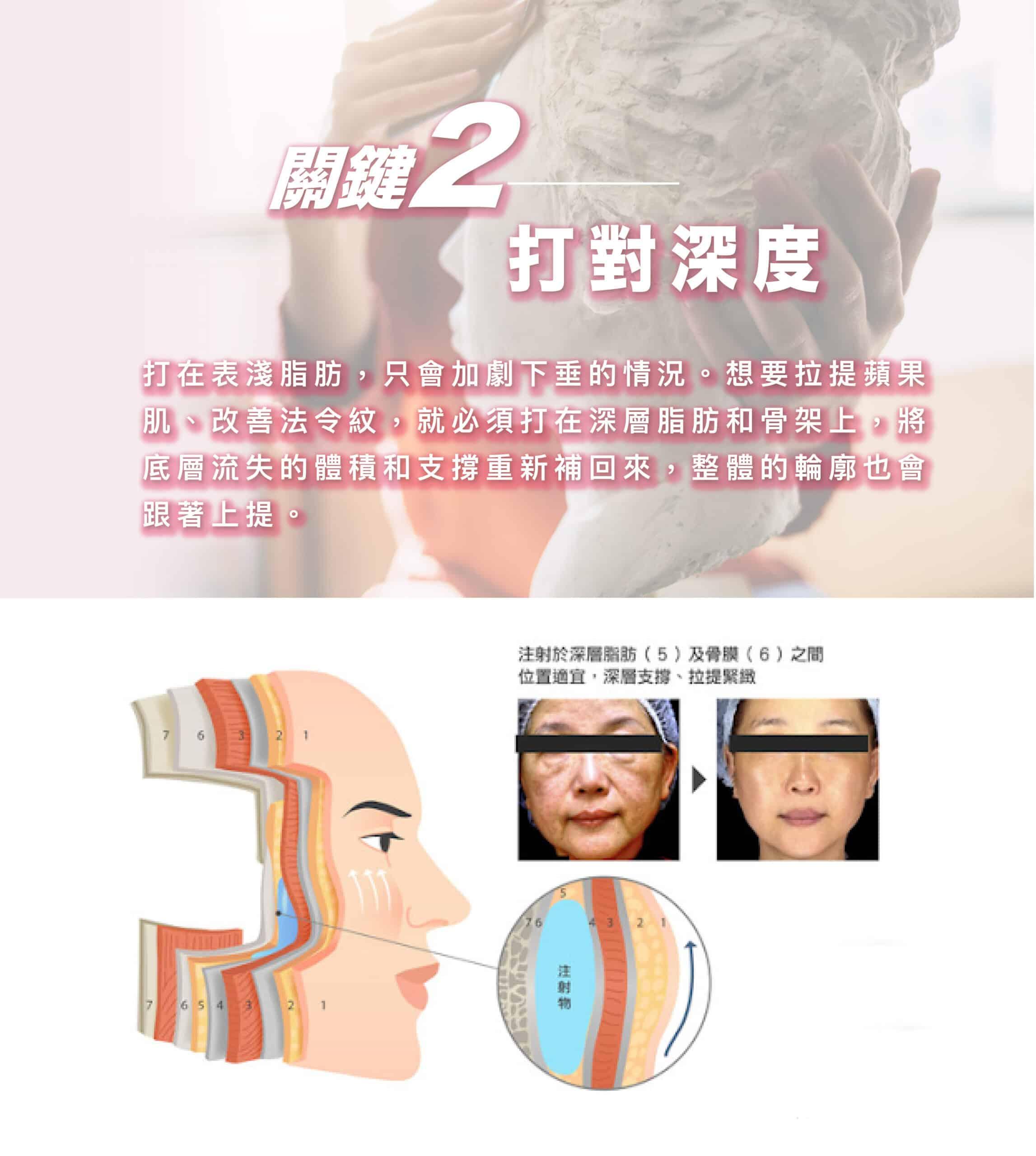 法令紋 法令紋 07 scaled
